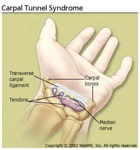Carpal Tunnel Syndrome Symptoms and Related Conditions