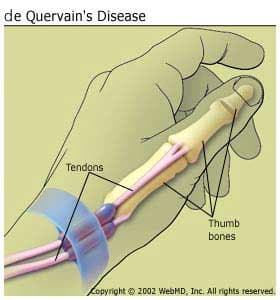 de Quervain's Tenosynovitis: Symptoms and Treatments for Wrist and ...
