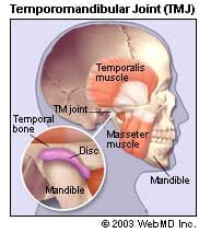 TMJ - Illustration of Temporomandibular Joint