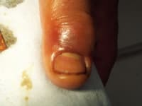 Finger Infection Photo