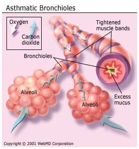Asthmatic Bronchioles