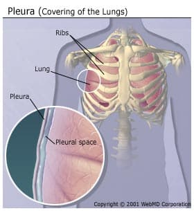Pleura (Covering of the Lungs)
