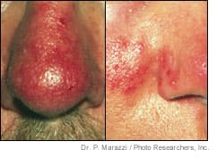 Close-up images of rosacea