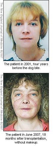 human partial face transplantation