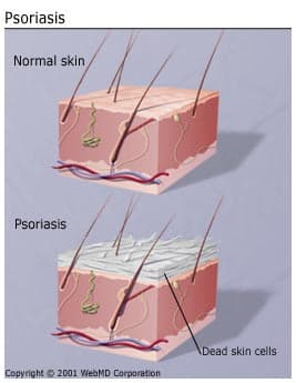 understanding psoriasis basics Psoriasis Spot Free In 30 Days A True Story