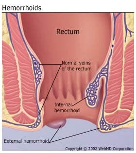 hemorrhoids - internal vs external hemorrhoids and causes of, Human Body