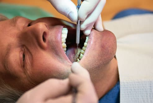 Man with crowns having teeth cleaned by dentist