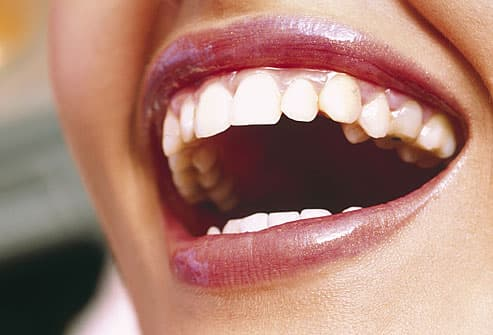 Close up of womans smile with white teeth