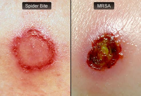 MRSA Pictures Slideshow: MRSA Skin Infection Signs and Symptoms