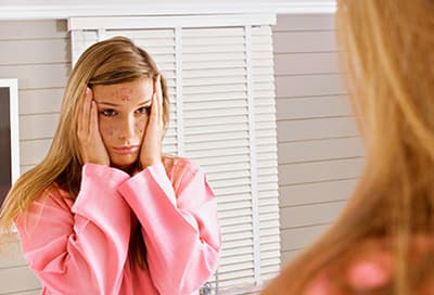 Young woman looking at acne in mirror