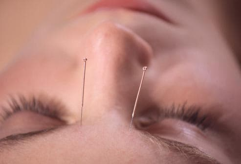 forehead acupuncture