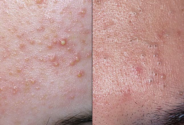 Photo of acne whiteheads and blackheads
