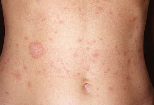 photo of pityriasis rosea on torso