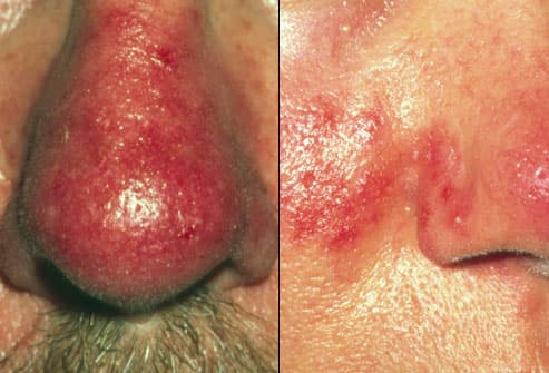 Photo composite of rosacea symptoms