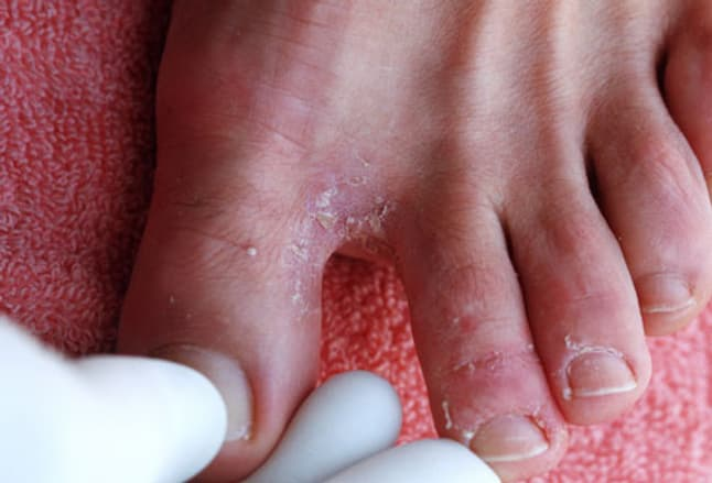 Photo of athlete's foot between toes