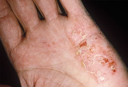 Photo of eczema on a hand