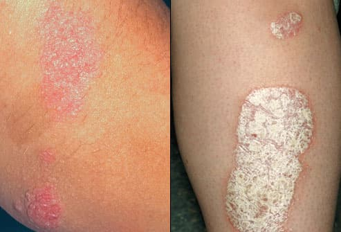 Mild to severe symptoms of psoriasis