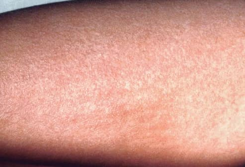 scarlet fever rash on leg