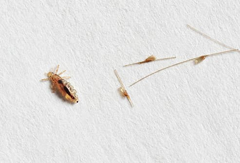 lice closeup