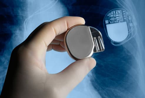 Pacemaker And Chest Xray
