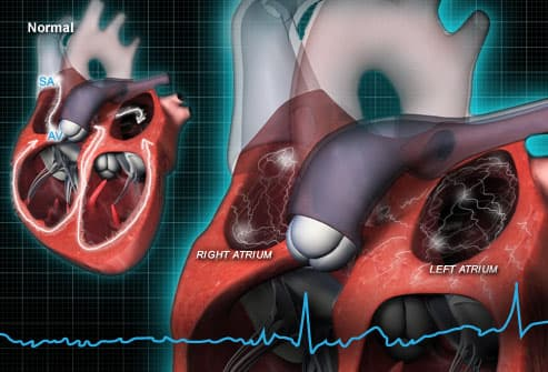 Patients with abnormally fast heart rhythms to benefit from modification of treatment