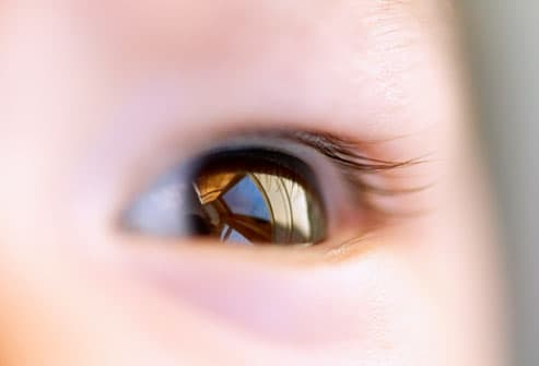 Pictures Of Eyes Up Close. your baby, up close. Why?