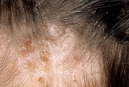 Head lice infestation