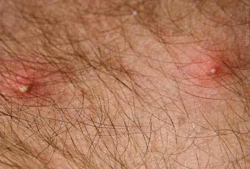 Fire ant bites showing with white pustules