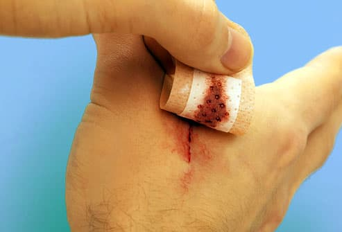 Man Removing Bandage from Hand  Wound