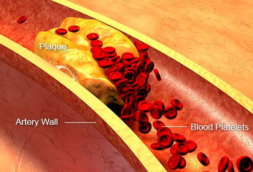 clogged artery with platelets