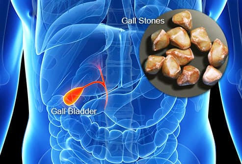 gall bladder and stones