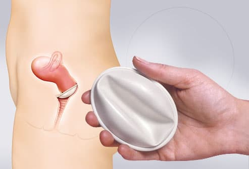 diaphragm contraception in hand and inserted