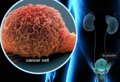 Stanford scientists identify source of most cases of invasive blaDder cancer