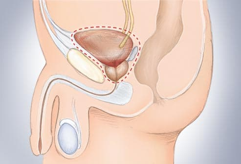 illustration of bladder cancer surgery