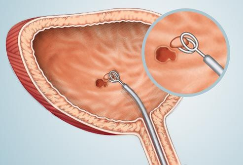 cystoscopy illustration