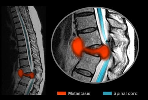 Spinal mestatic breast cancer