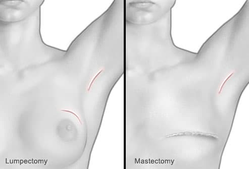 Lumpectomy and Mastectomy