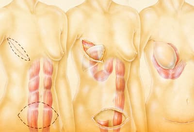 Illustration Of Breast Reconstruction