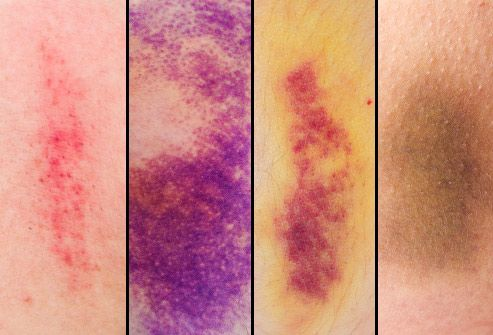bruise color progression