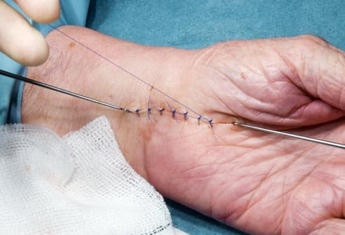 stitches in hand