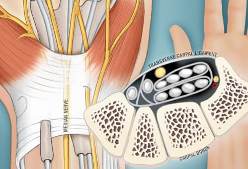 illustration of carpal tunnel