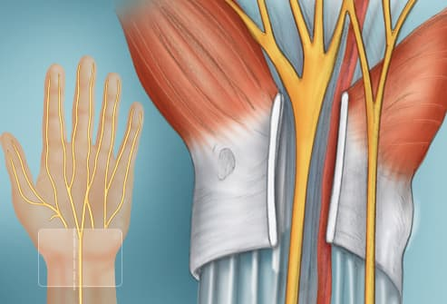 illustration of hand surgery