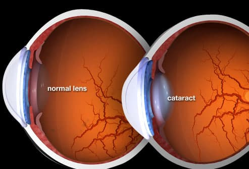 Illustration Of Cataract
