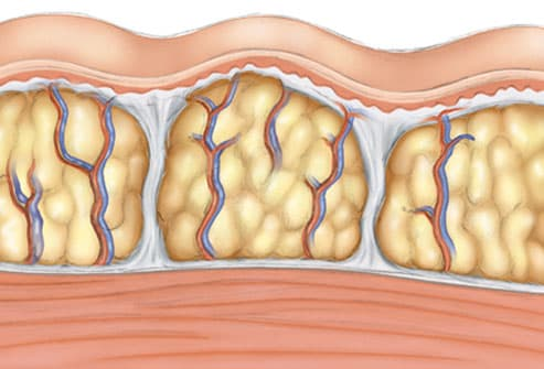 Illustration of cellulite
