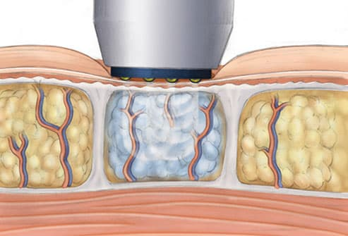 Illustration of radiofrequency for cellulite
