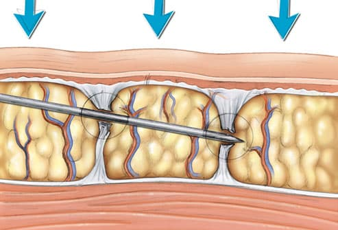 Illustration of subcision