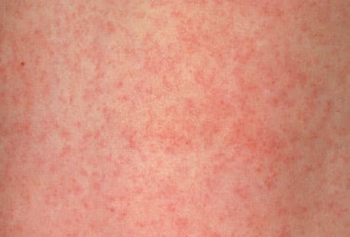 Rubella(German Measles) Rash on Child