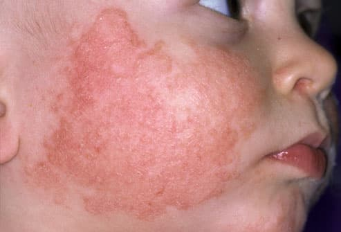 facial rashes #10