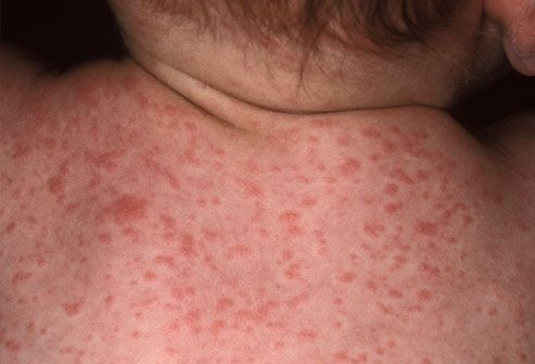Photo of Roseola Infantum Skin Rash on Baby