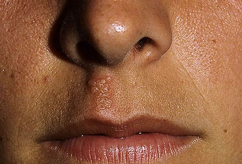 Herpes sore between nose and mouth